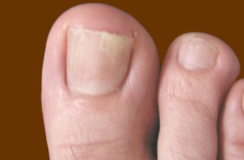 Каким средством вылечить грибок ногтей на ногах
