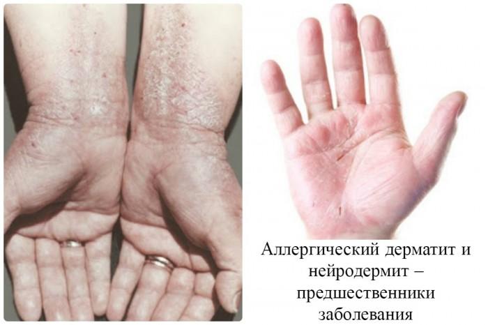 Кожные заболевания, провоцирующие появление экземы